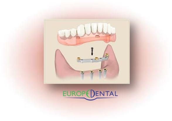 Dentier sur implant