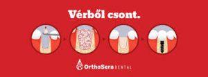 greffe osseuse orthosera